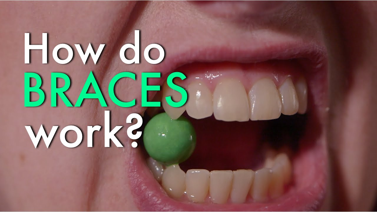 how-braces-work